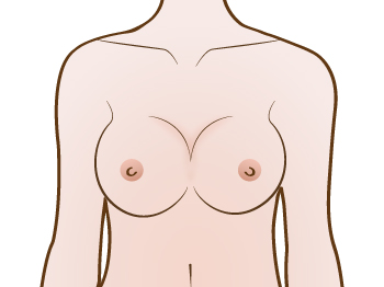 Symmastia or  Uniboob correction