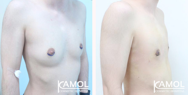 Before and After Mastectomy (Top Surgery)
