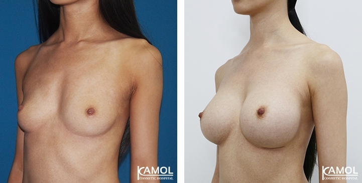 Breast surgery Thailand ,Breast Implant before after,Breast Augmentation before after,Breast Augmentation