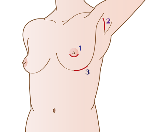 Shows the  incisions of breast augmentation