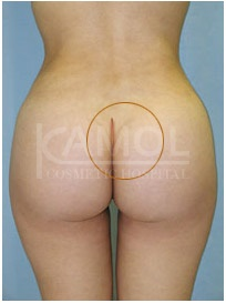 Buttocks augmentation incision and implants