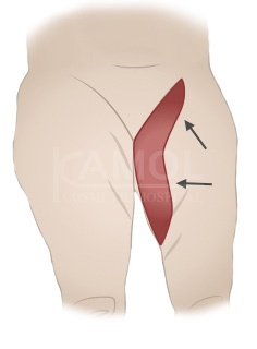 The inner thighs incision