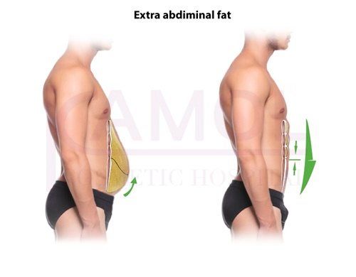 The area of subcutaneous fat and six pack creation