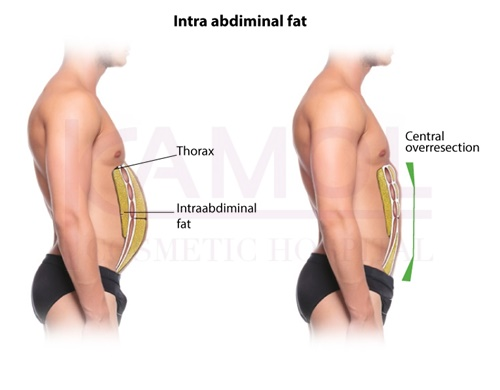 The area of excess fat above and below abdominal cavity and six pack creation
