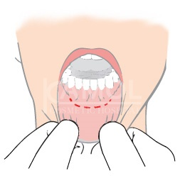 Incision Inside the Mouth