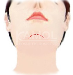 Incision Underneath the Chin