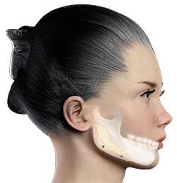 Jaw Augmentation, Jaw Implant, Mandibular Augmentation
