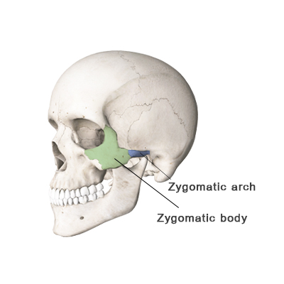 shows Zygomatic Bone, Zygomatic arch