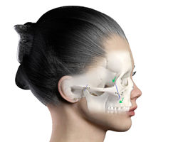 Positioning of Zygoma Reduction (Cheekbone Reduction)