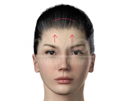 Incision line of forehead lift