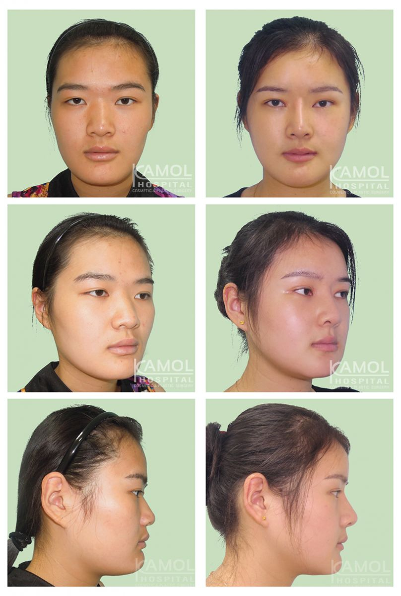 Kamol Hospital - Jaw Reduction Before and After