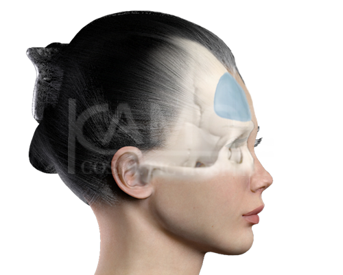 Positioning of Material for Forehead Implant