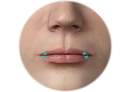 Positioning of the Incision and Scar for Lip Augmentation by Alloderm