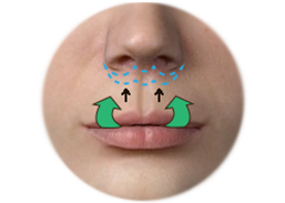 Positioning of the Upper Lip Lift Incision and Scar along the Lower Edge of the nose
