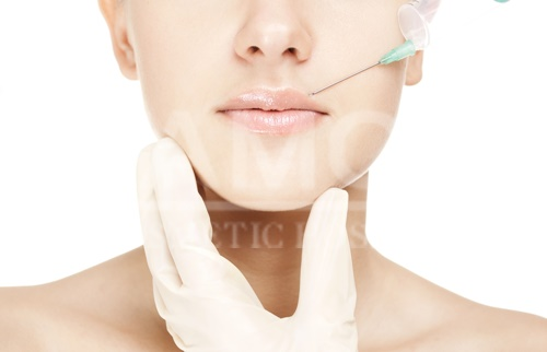 Lips Injection by Fillers