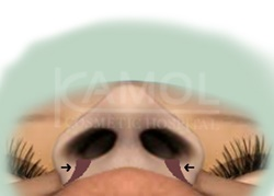 The Area to Be Removed to Decrease the Nostrils Size
