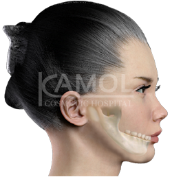 Shows before and after surgery jaw augmentation