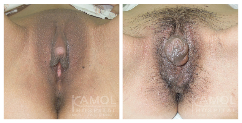 female to male sex reassignment surgery,metoidioplasty before and after