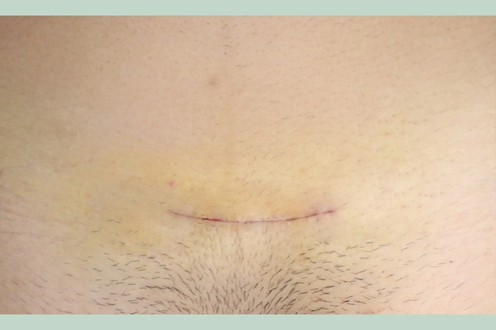 Mastectomy  (Top Surgery)