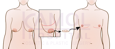 Mastectomy with grafting of free nipple