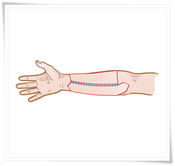 Radial Forearm Free Flap