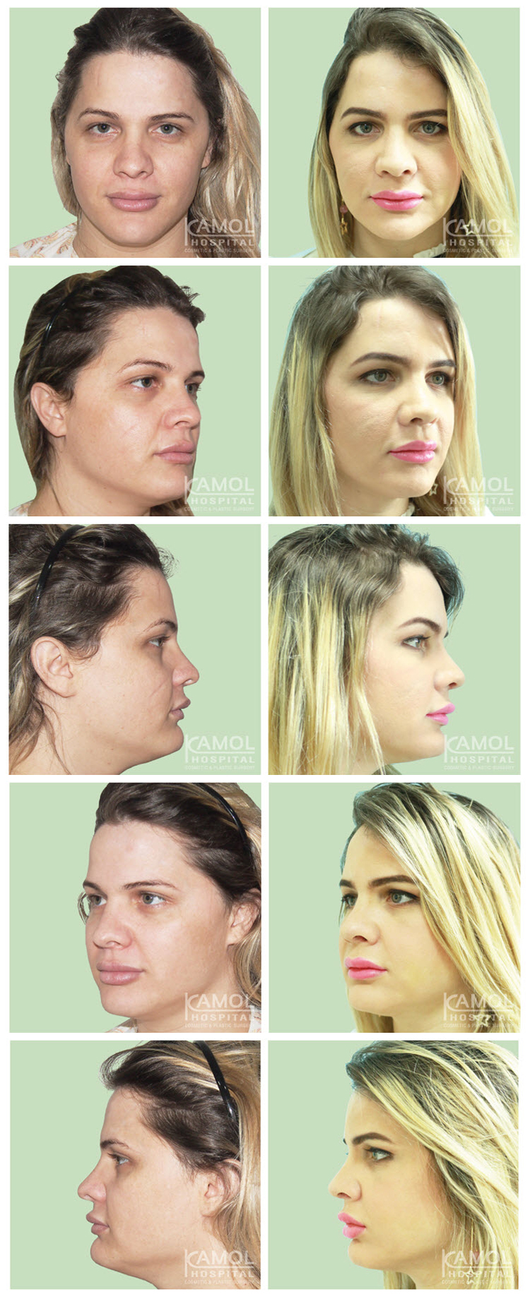 Kamol hospital - Facial Reconstruction Surgery Male to Female