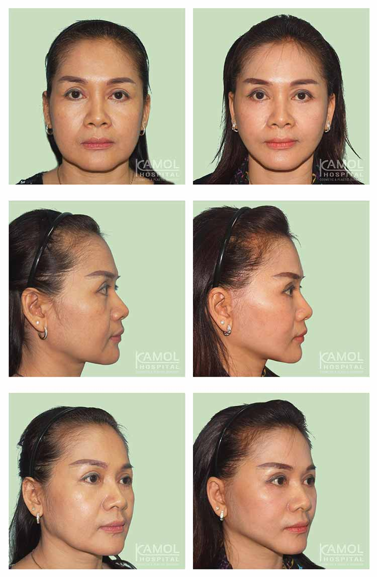 ดึงหน้า,Face Lift,Face Modifying
