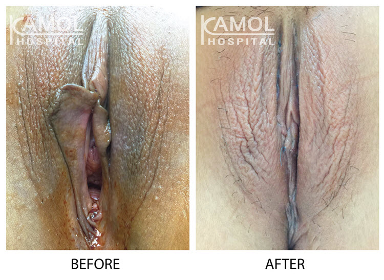 A complete rejuvination of female genital cosmetic surgery has to undergoing a combination of both vaginoplasty and labiaplasty procedures you will be youthful appearance and sexually fulfilling results.